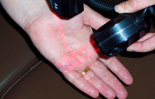 photo of an healed hand after to receiving cold laser therapy by Dr. Jen Buonano at Healthy Family Chiropractic