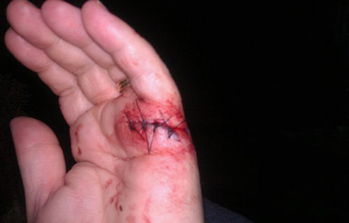 photo of an injured hand prior to receiving cold laser therapy by Dr. Jen Buonano at Healthy Family Chiropractic